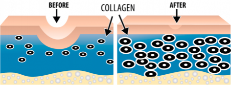 collagen_induction_therapy